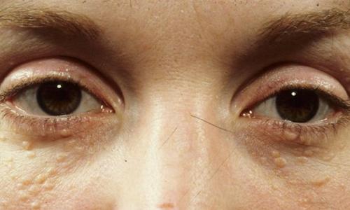 Mụn thịt quanh mắt là gì?