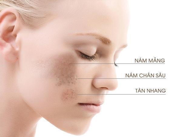 Nám là một bệnh lý về da, có rất nhiều nguyên nhân gây ra nám.