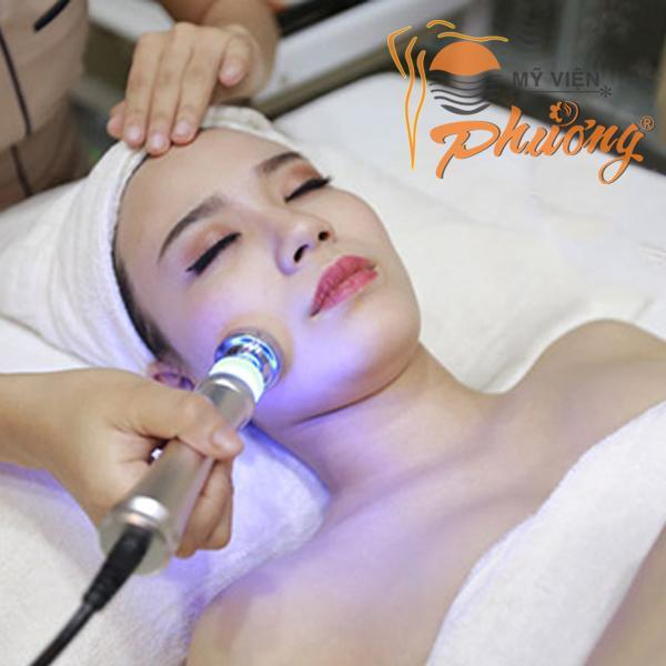 Cấy da siêu vi điểm - Công nghệ mới xóa sạch sẹo rỗ, sẹo lõm