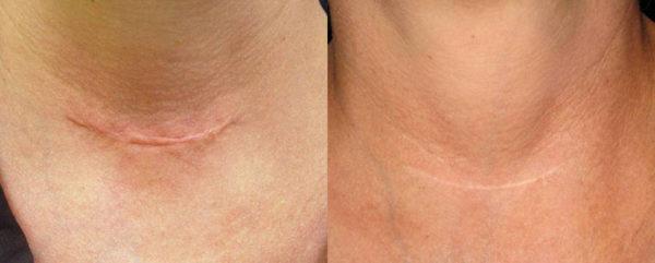 Trị sẹo lồi an toàn bằng Công nghệ Laser Co2