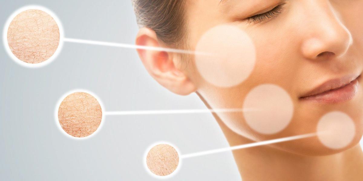 Công nghệ Hifu giúp làn da trẻ hóa hơn 5 tuổi chỉ sau một liệu trình