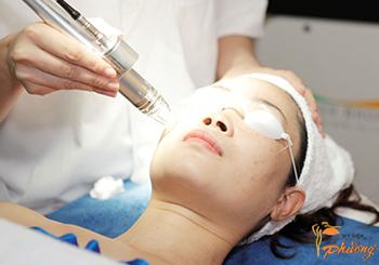 Phương pháp điều trị sẹo rỗ bằng lăn kim tế bào gốc