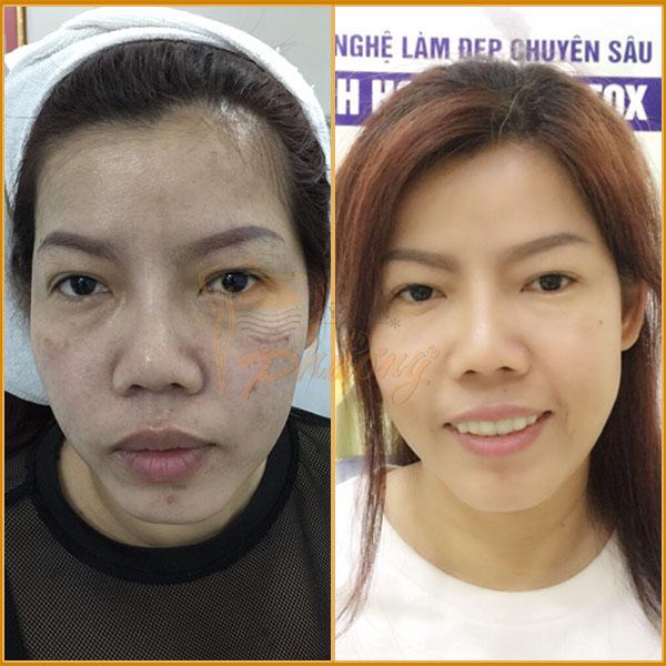Hình ảnh khách hàng trước và sau khi nâng cơ mặt - Ảnh 1