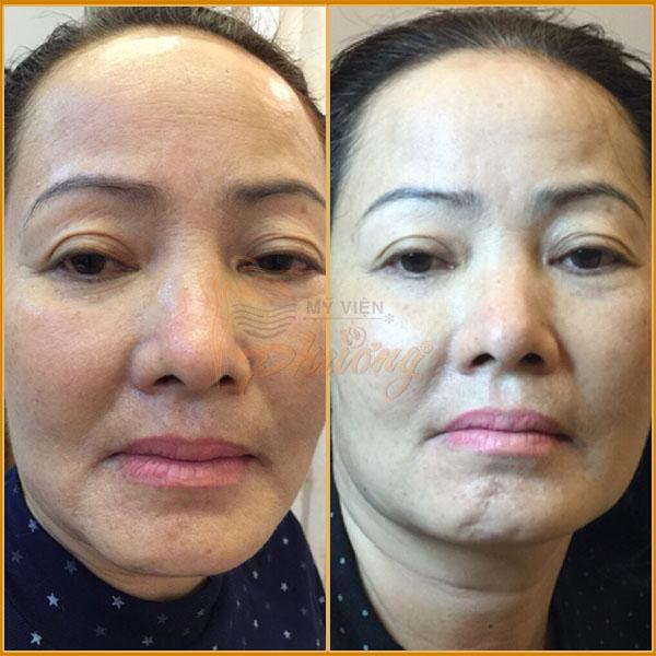 Hình ảnh khách hàng trước và sau khi nâng cơ mặt - Ảnh 2