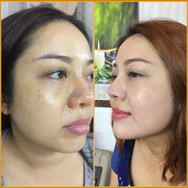 Hình ảnh khách hàng trước và sau khi nâng cơ mặt - Ảnh 3