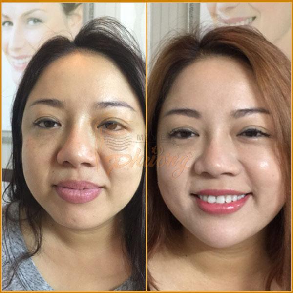 Hình ảnh khách hàng trước và sau khi nâng cơ mặt - Ảnh 4