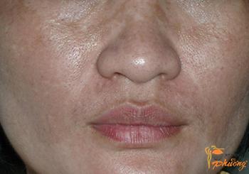 Bị nám da mặt phải làm sao để khỏi?