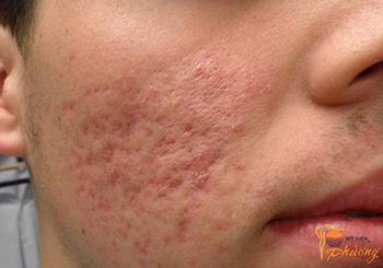 Xóa sẹo lõm trên mặt có khó không?