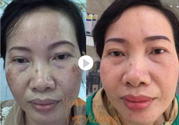 Bí quyết chữa trị nám da mặt hiệu quả giúp kéo dài tuổi thanh xuân