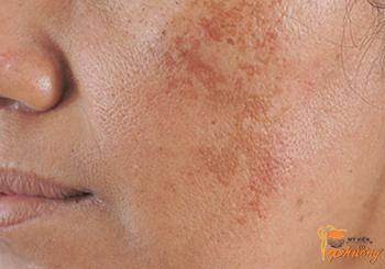 Các phương pháp trị nám da mặt mới nhất hiện nay