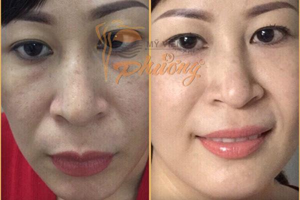 Bí quyết chăm sóc da thời hiện đại để da khỏe đẹp