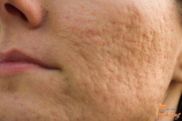 Cách trị sẹo rỗ lâu năm mà bạn cần biết