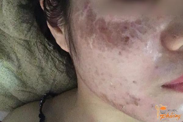 Hối hận không kịp của việc lăn kim da mặt