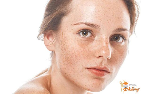 Kiến thức cần biết trước khi điều trị nám da