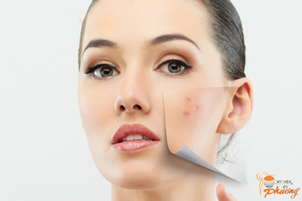 Kinh nghiệm điều trị sẹo rỗ lâu năm hiệu quả rõ rệt