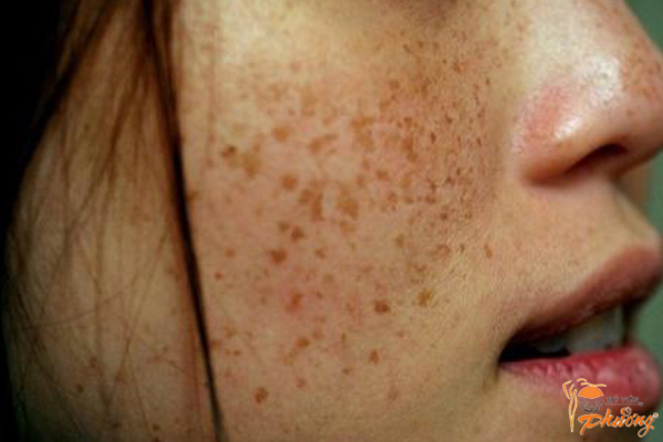 Nguyên nhân trị nám da mặt mãi không khỏi