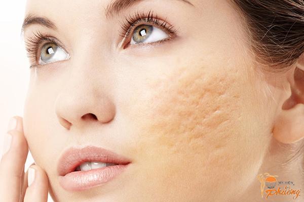 Những lý do không nên điều trị sẹo rỗ tại nhà