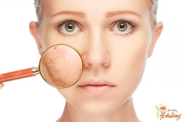 Những sai lầm khi điều trị nám da