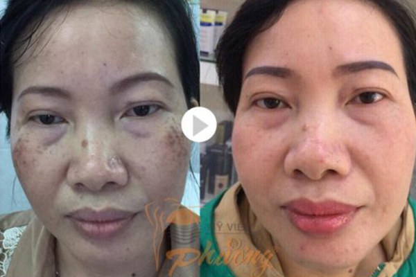 Kinh nghiệm trị nám da mặt thực tế của khách hàng