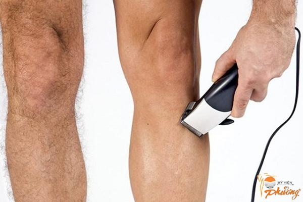 Triệt lông chân nam bằng kem có hiệu quả không?