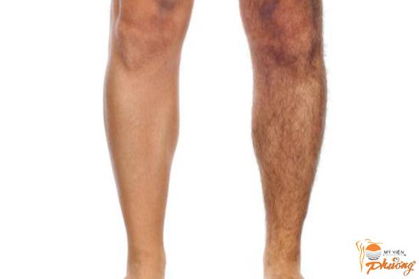Xu hướng thẩm mỹ hiện đại triệt lông chân nam