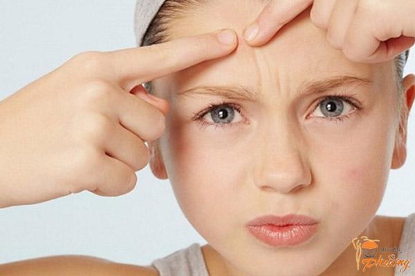 7 lời khuyên từ chuyên gia để ngăn ngừa mụn hiệu quả