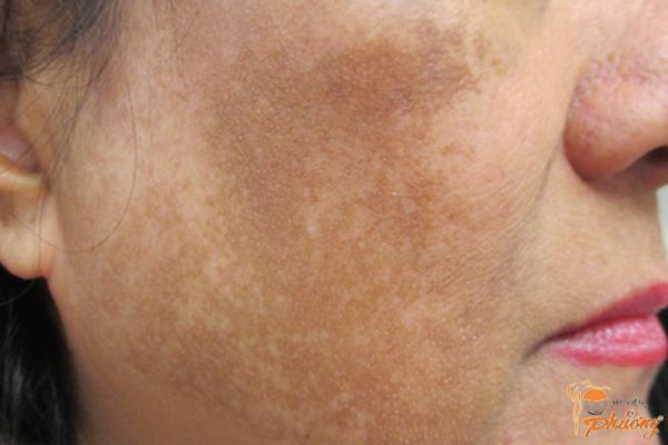 Nguyên nhân và cách trị nám da mặt hiệu quả