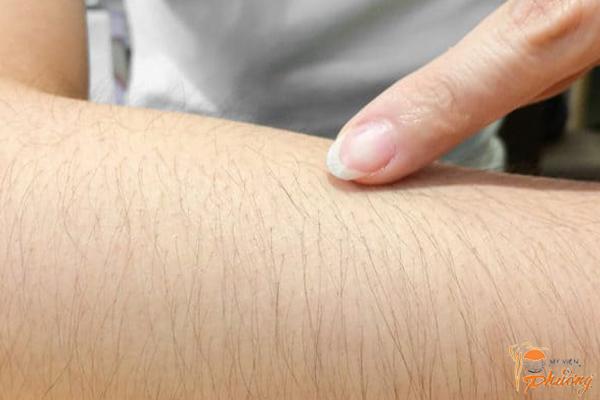 Triệt lông vĩnh viễn bằng Laser có an toàn không?