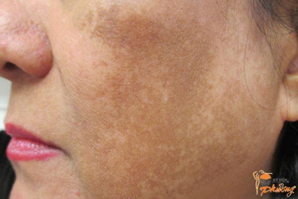 Trị nám da mặt lâu năm hiệu quả nhanh