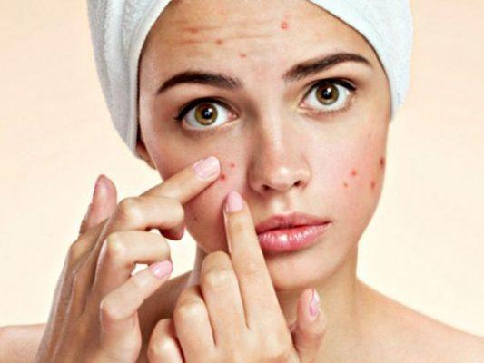 Nặn mụn không đúng cách gây tổn thương da