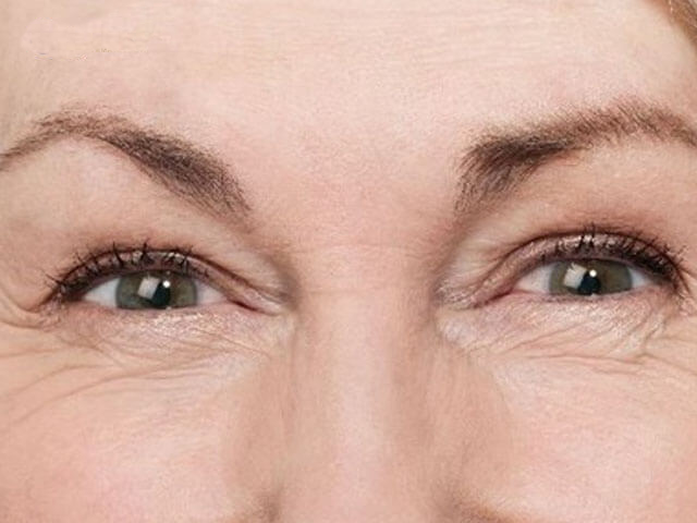 ngăn ngừa nếp nhăn quanh mắt 2