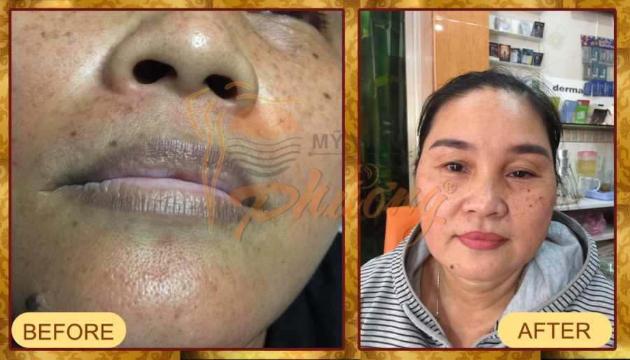 Hiệu quả phun môi Collagen