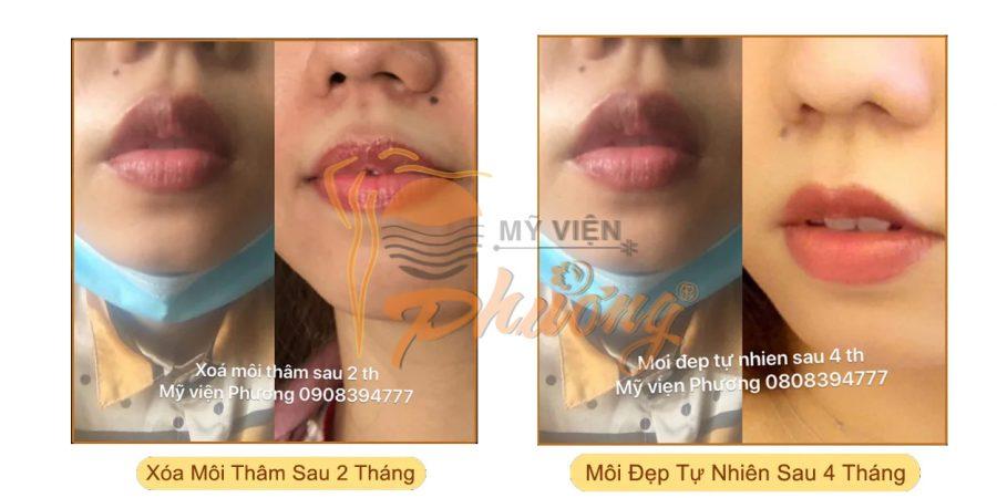 Kết quả sau Phun môi Collagen