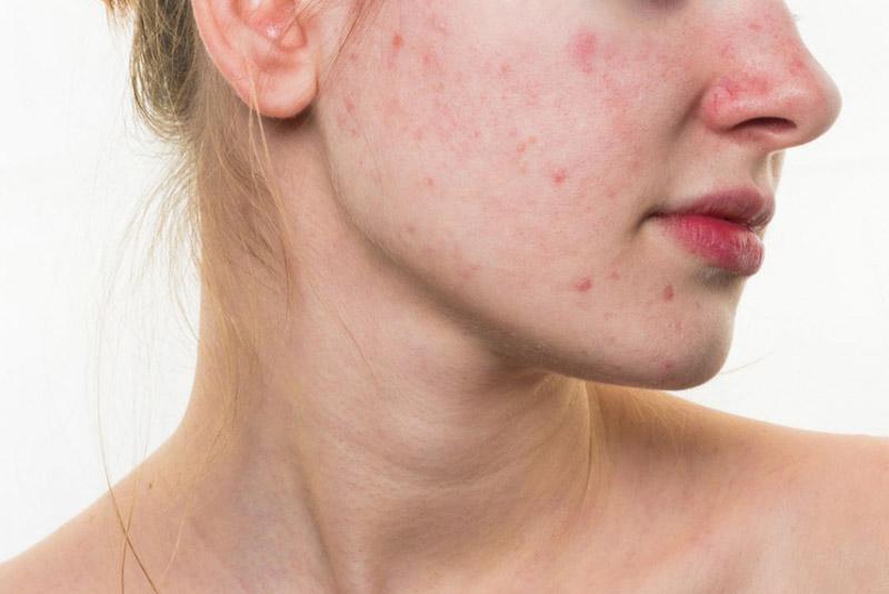 Biểu hiện của da dị ứng
