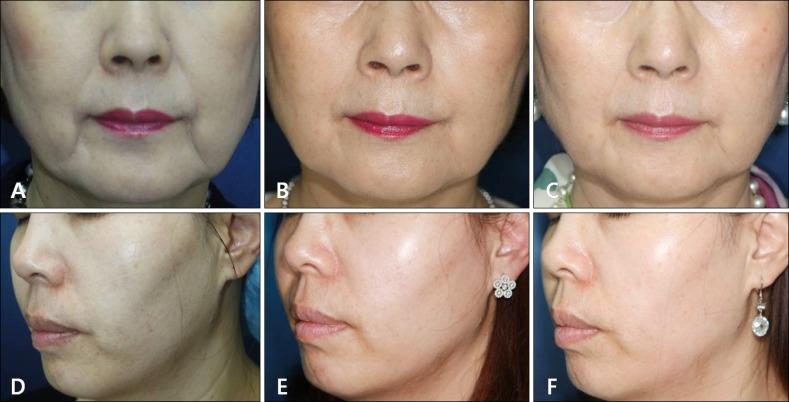 Hiệu quả điều trị nâng cơ mặt bằng Hifu trên chị em phụ nữ