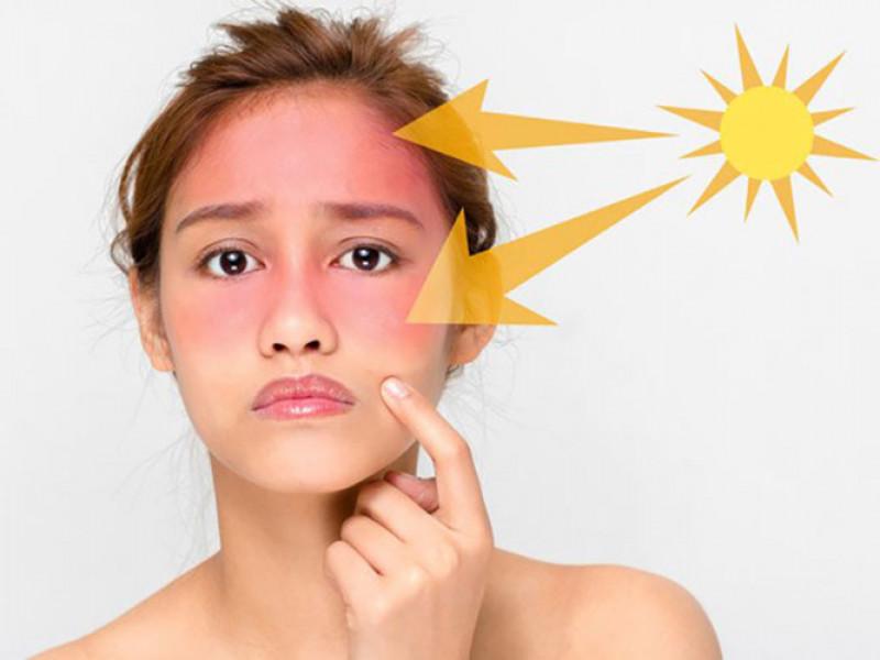 ánh nắng là nguyên nhân gây nám da