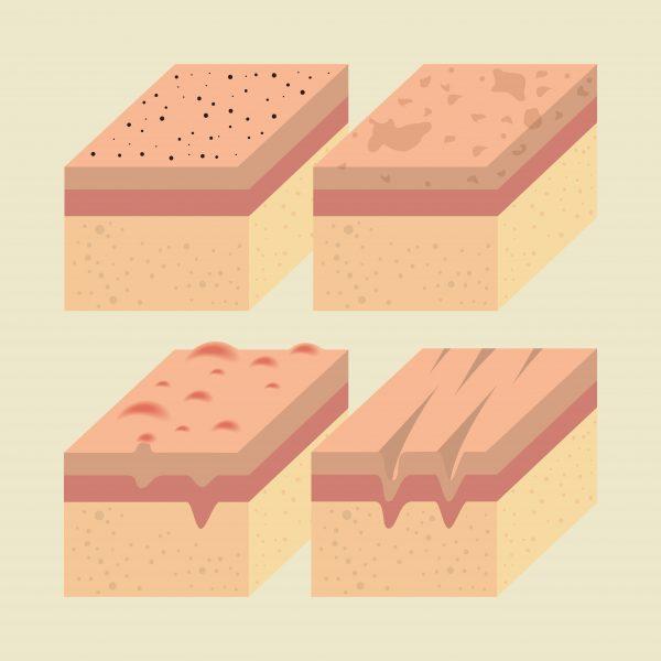 Cơ chế hoạt động của phương pháp HIFU trên da